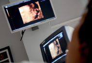 ultrazvok rame