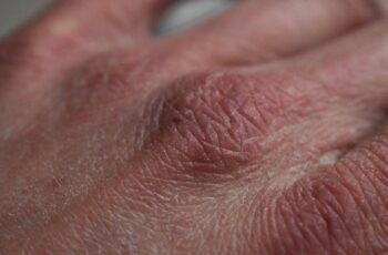 suha koža